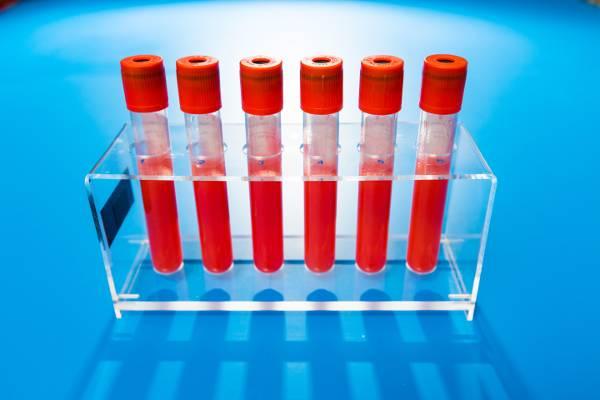Bluttest auf Down-Syndrom: Rest-Unsicherheit bleibt